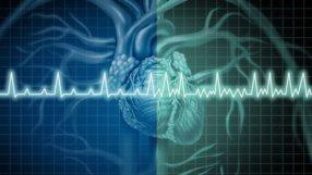 50% dos episódios de Fibrilação Atrial Paroxística são Assintomáticos
